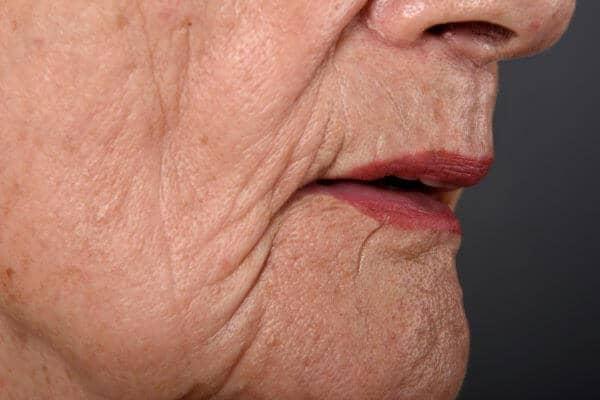 ¿Labios arrugados?
