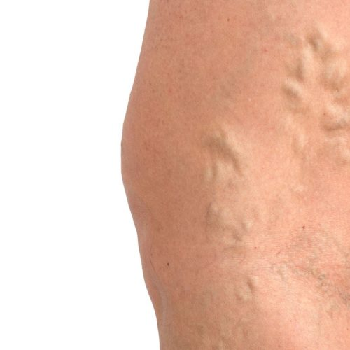 thick veins